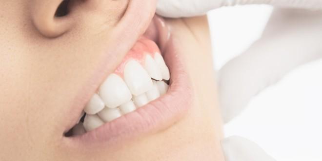 Desni i srce ugrožava ista bakterija koja uzrokuje periodontitis