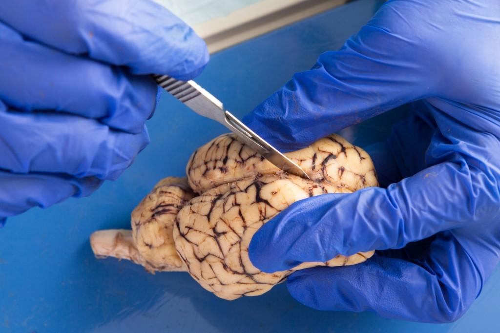 Prionske bolesti uzrokuju infektivni proteini.