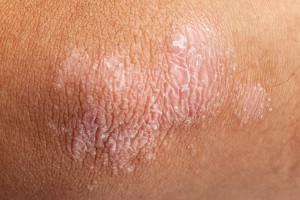 Psoriasis on elbow skin