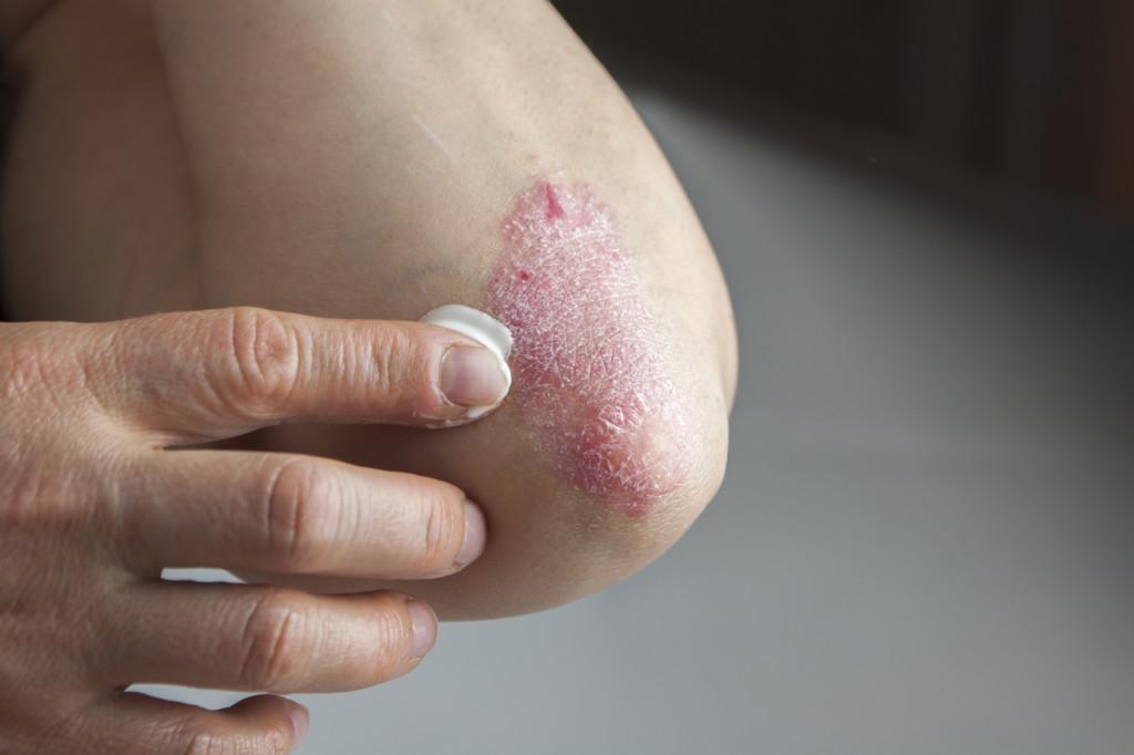 Eli Lilly za psorijazu - novi lijek primjenjivat će se za liječenje umjerenih do teških slučajeva stanja kože plak psorijaze.