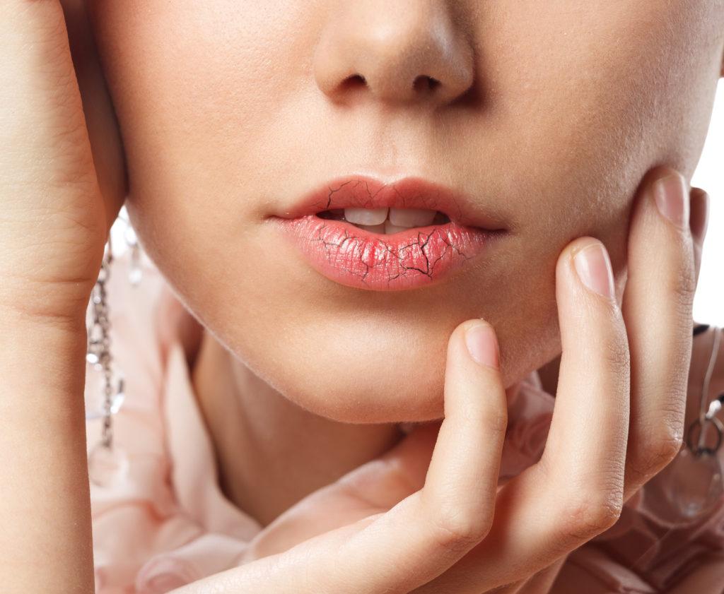 Što uzrokuje suha usta