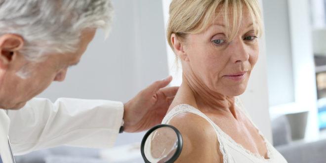 Panel stručnjaka: Pregledi madeža ne smanjuju stopu raka kože