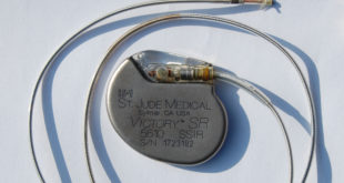 St Jude Medical pacemaker, foto: Wikipedia