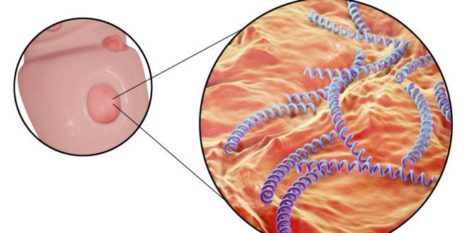 Brzi porast sifilisa u Japanu, Tokio naročito pogođen