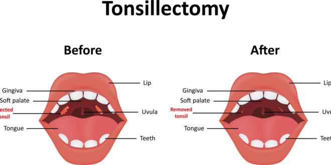 Tonzilektomija kod djece ima više smisla za apneju nego grlo