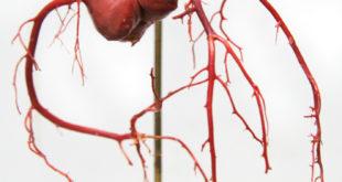 Koronarne (srčane) arterije